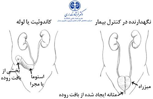 Surgery-procedure